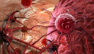 تقنية جديدة تدفع خلايا السرطان إلى الانتحار